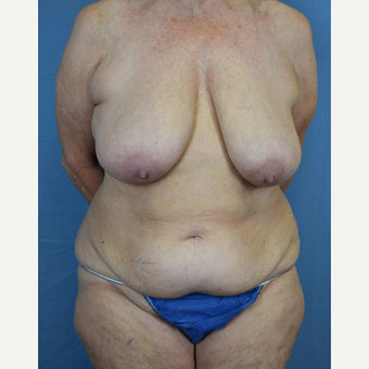 55-64 year old woman treated with Mommy Makeover before 3589270