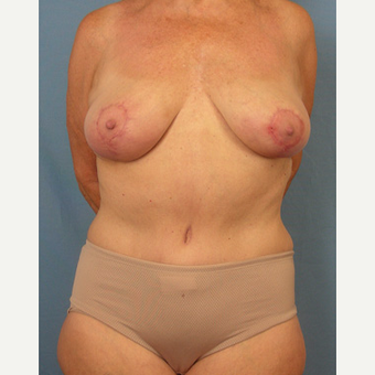 55-64 year old woman treated with Mommy Makeover after 3589270