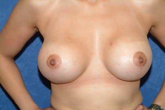 "Breast Lift with Implants - 29 year old female, 5'2"", 125 lbs after 1235278"