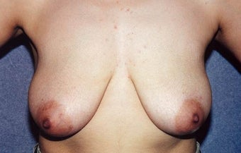 "Breast Lift with Implants - 29 year old female, 5'2"", 125 lbs before 1235278"