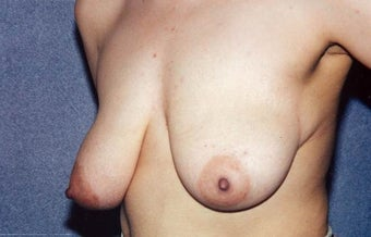 "Breast Lift with Implants - 29 year old female, 5'2"", 125 lbs 1235278"