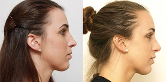 Septoplasty with rhinoplasty before 619694