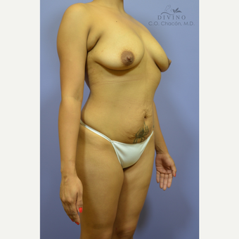 25-34 year old woman treated with Mommy Makeover before 3421599