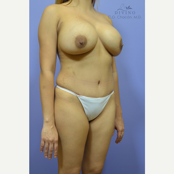 25-34 year old woman treated with Mommy Makeover after 3421599