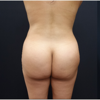 25-34 year old woman treated with Brazilian Butt Lift before 3286151