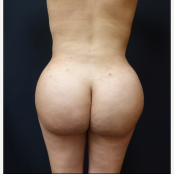 25-34 year old woman treated with Brazilian Butt Lift after 3286151