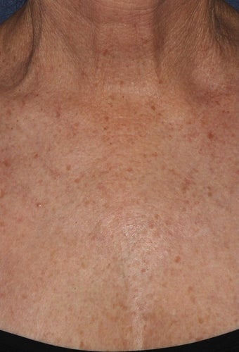 65 yo female treated for Chest wrinkles with Sculptra after 1459291