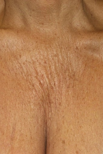 65 yo female treated for Chest wrinkles with Sculptra before 1459291