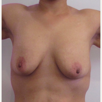 33 year-old female underwent a breast lift. before 3437461