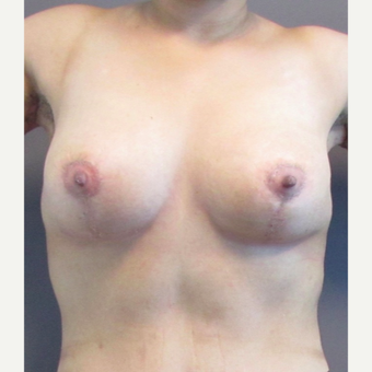 33 year-old female underwent a breast lift. after 3437461