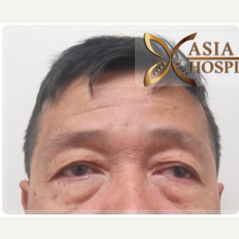 55-64 year old man treated with Eye Bags Treatment before 3761032