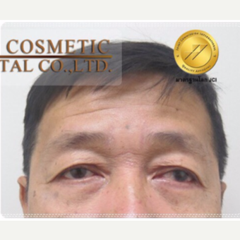 55-64 year old man treated with Eye Bags Treatment after 3761032