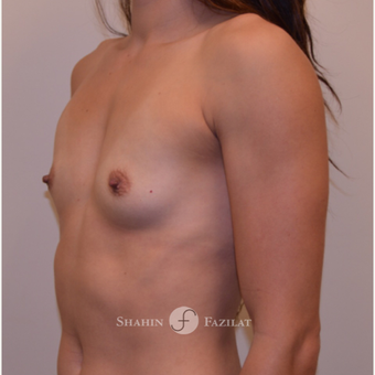 25-34 year old woman treated with Breast Augmentation before 3702528