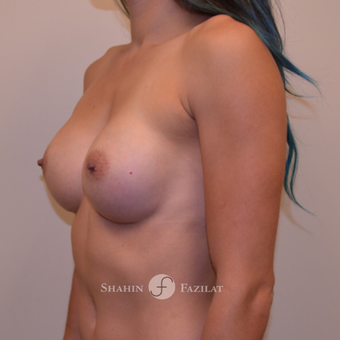 25-34 year old woman treated with Breast Augmentation after 3702528