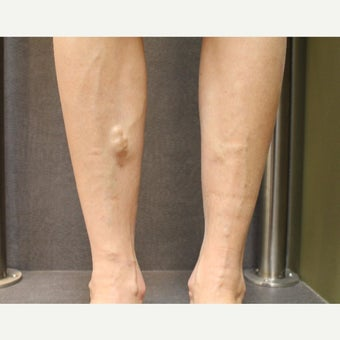 45-54 year old woman treated with Sclerotherapy before 2081487