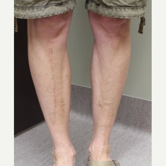 45-54 year old woman treated with Sclerotherapy after 2081487
