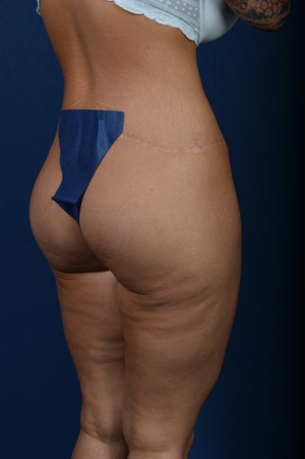 29 Year Old Female - Gluteal Augmentation after 977550
