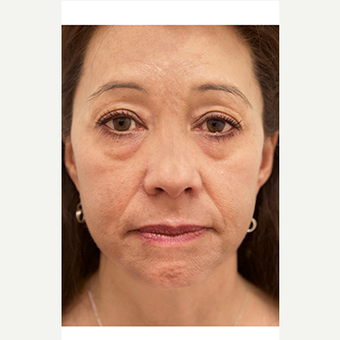 45-54 year old woman treated with Eyelid Surgery before 3548888