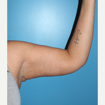 25-34 year old woman treated with Arm Lift after 3498209