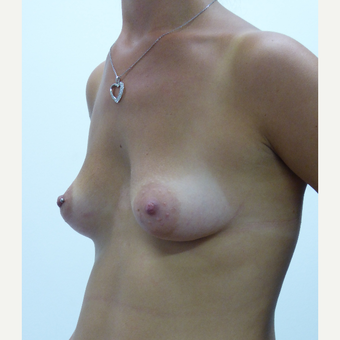 25-34 year old woman with chest wall deformity and tuberous breasts treated with Breast Augmentation before 3833187