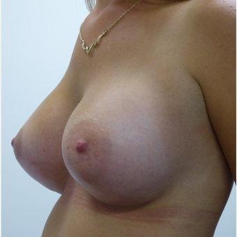 25-34 year old woman with chest wall deformity and tuberous breasts treated with Breast Augmentation after 3833187