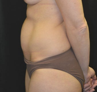 35-44 year old woman treated with Tummy Tuck before 3181825