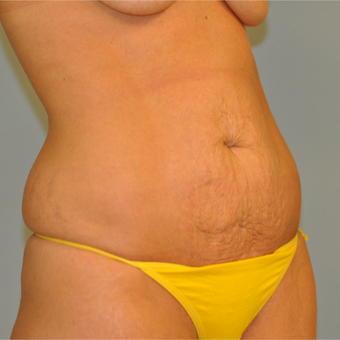 25-34 year old woman treated with Drainless Tummy Tuck