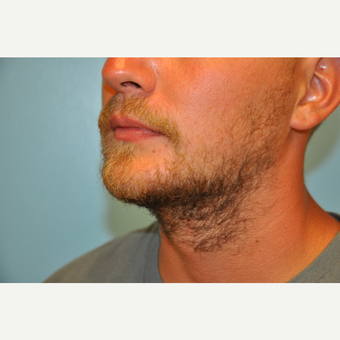 25-34 year old man treated with ThermiTight and Chin Implant after 3059750