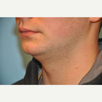 25-34 year old man treated with ThermiTight and Chin Implant before 3059750