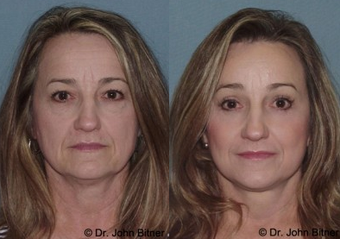 Laser Skin Resurfacing before 1156582