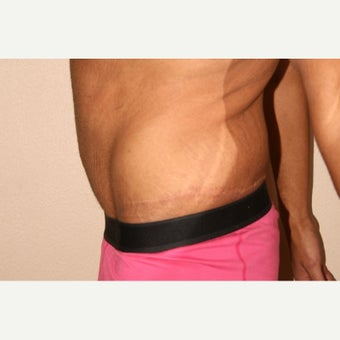 25-34 year old man treated with Male Tummy Tuck after 2490841
