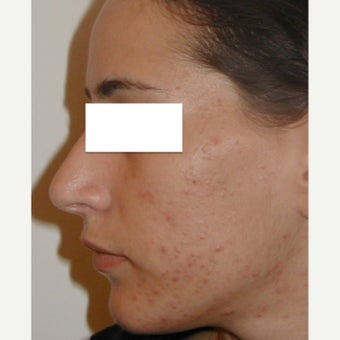 18-24 year old woman treated with Blue light Acne Phototherapy (iClearXL, Curelight Medical)
