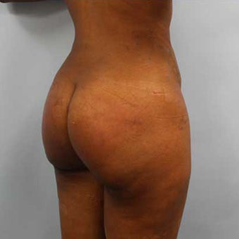 35-44 year old woman treated with Smart Lipo after 3437271