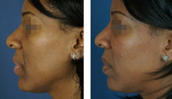 Fillers To Cheeks 928968
