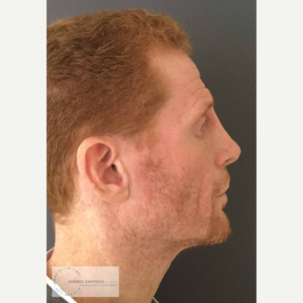 35-44 year old man treated with Rhinoplasty after 3692064
