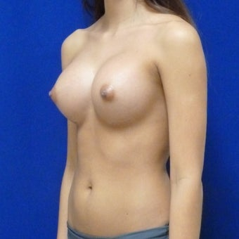 18-24 year old woman treated with Breast Augmentation 1673456