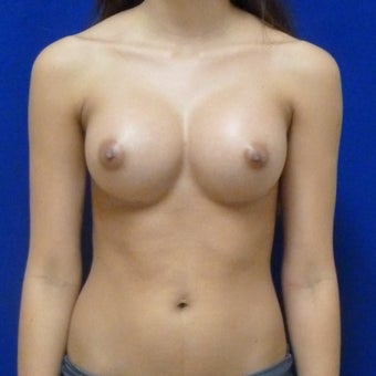 18-24 year old woman treated with Breast Augmentation after 1673456