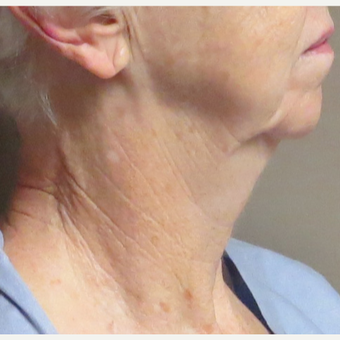 Neck Lift for this 74 Year Old Woman before 3169030