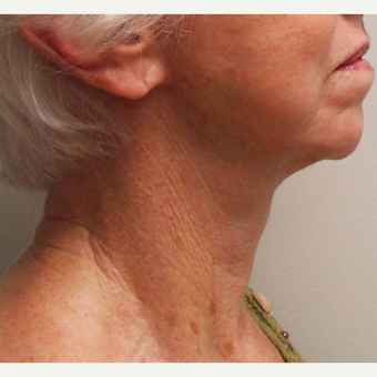 Neck Lift for this 74 Year Old Woman after 3169030