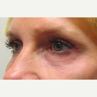 Eye Bags Treatment for This 48 Year Old Woman after 3305535