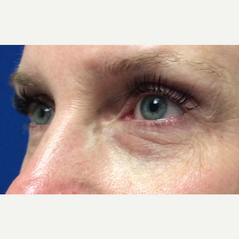 Eye Bags Treatment for This 48 Year Old Woman before 3305535