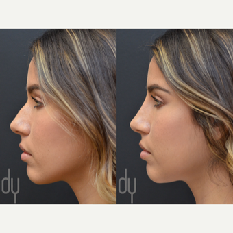 25-34 year old woman treated with Non Surgical Nose Job before 2990865
