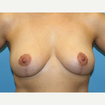 45 year old woman treated with Breast Reduction after 3582159