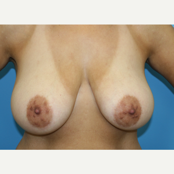 45 year old woman treated with Breast Reduction before 3582159