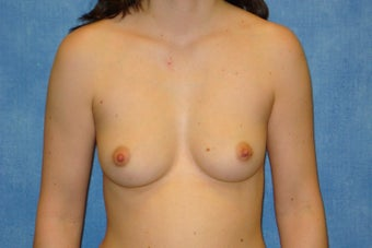 Breast Augmentation - Silicone 550cc High Profile Implants before 275624