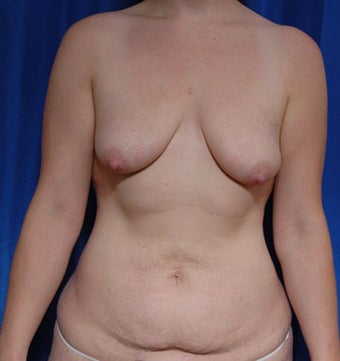 Mastopexy and fat grafting to the breast with augmentation before 121726