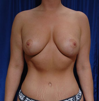 Mastopexy and fat grafting to the breast with augmentation after 121726