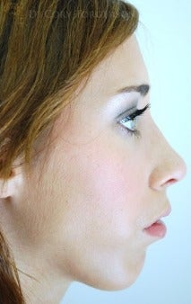 18-24 year old woman treated with Rhinoplasty after 3259902