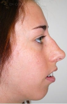 18-24 year old woman treated with Rhinoplasty before 3259902