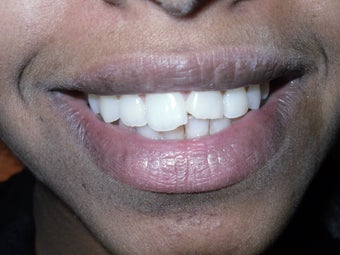 A 17 year old girl treated conservatively and esthetically for fractured front teeth before 919721